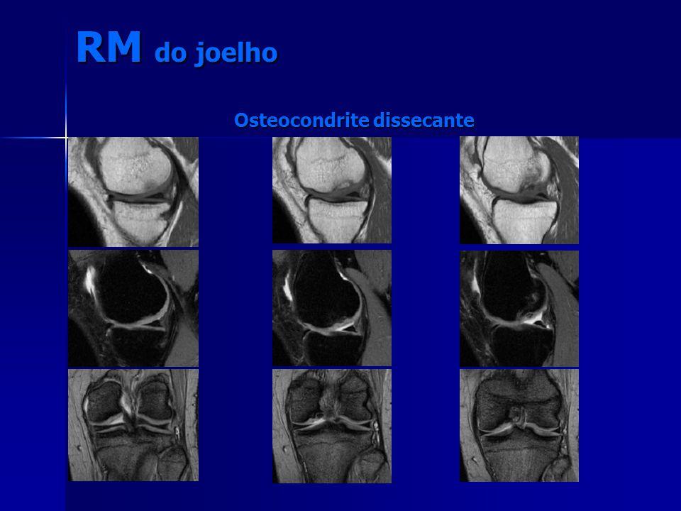 RM do joelho Osteocondrite dissecante