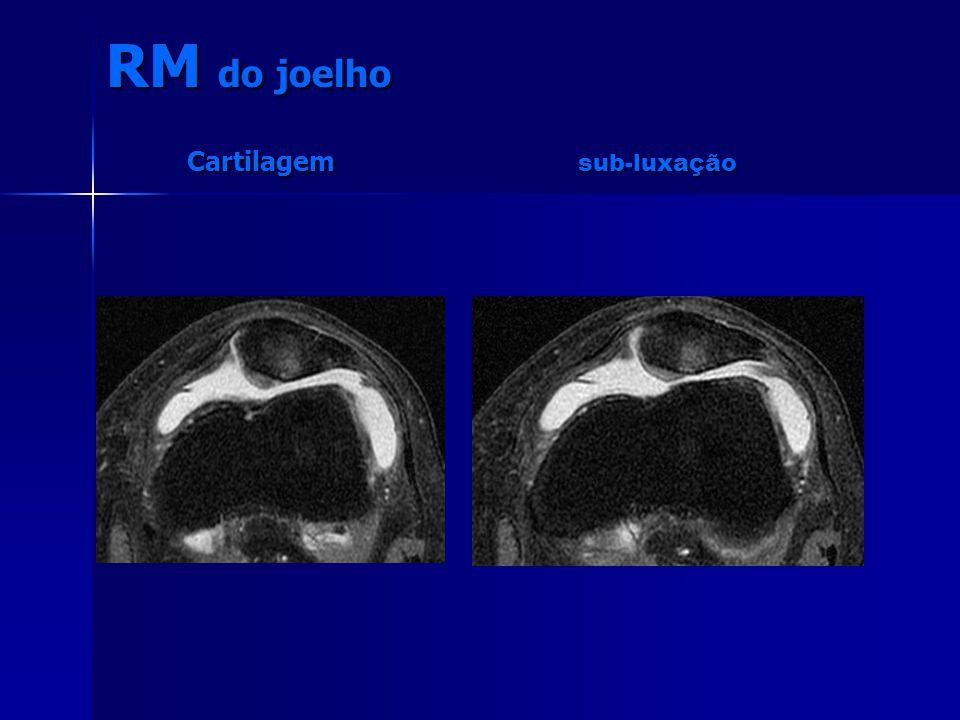 RM do joelho Cartilagem sub-luxação