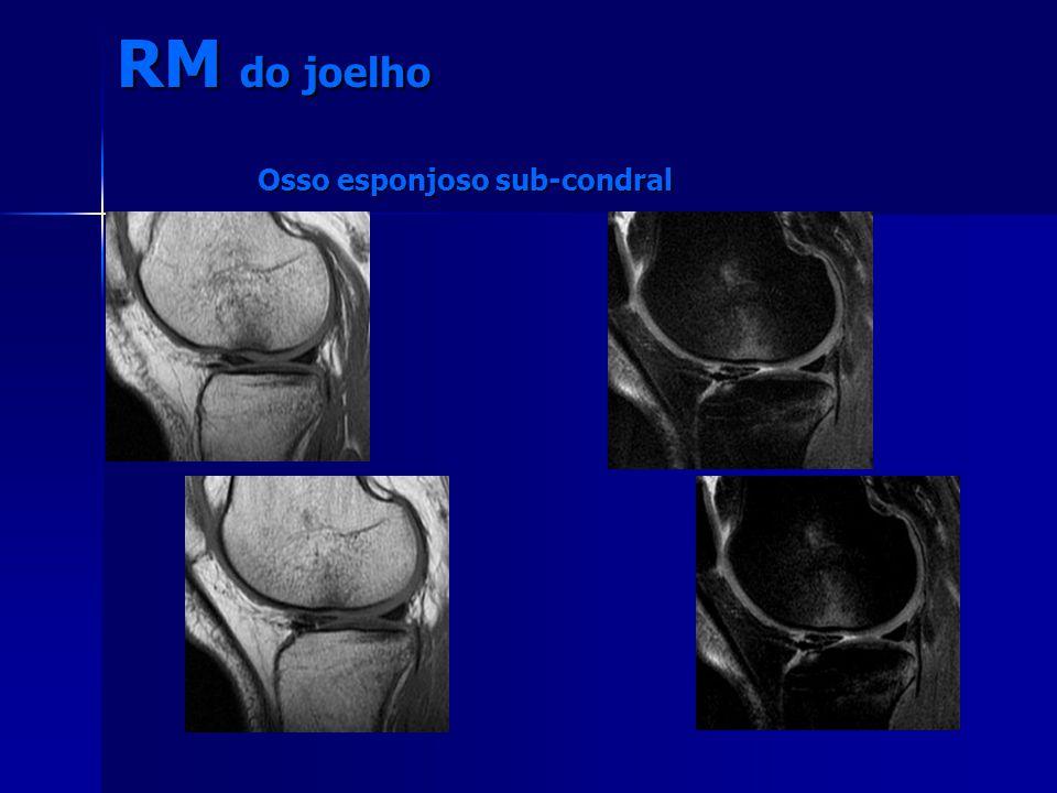 RM do joelho Osso esponjoso sub-condral