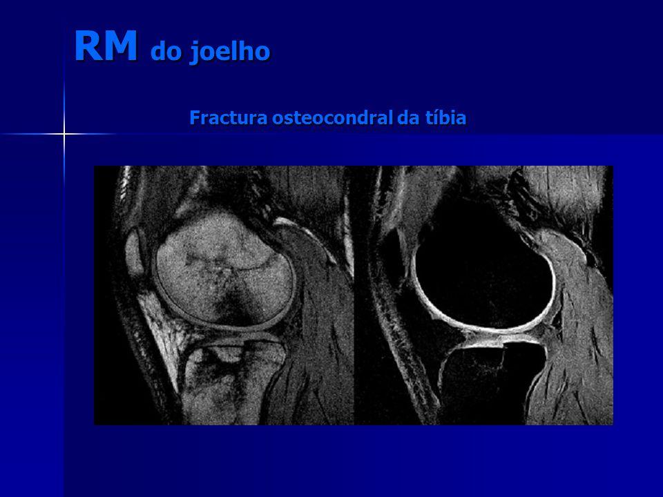RM do joelho Fractura osteocondral da tíbia