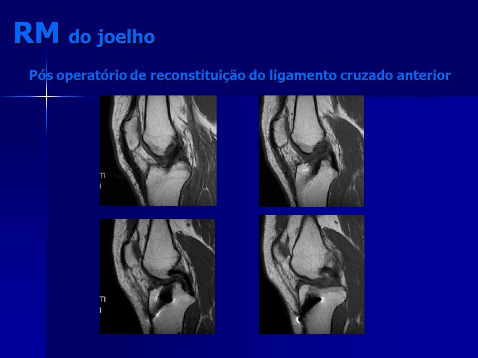 RM do joelho Pós operatório de reconstituição do ligamento cruzado anterior