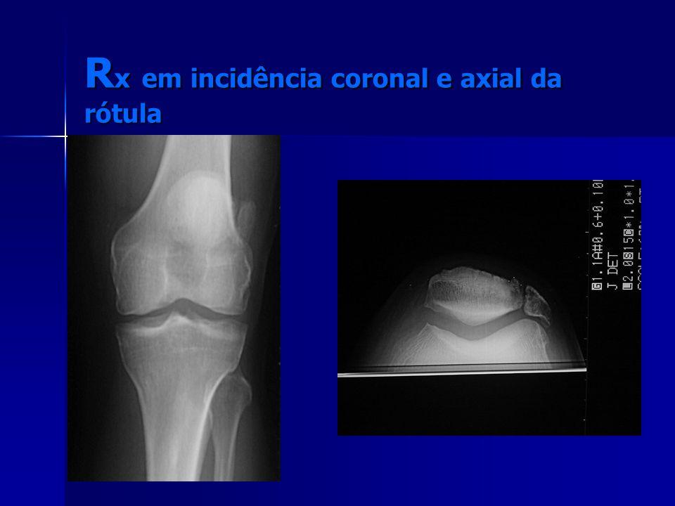 Rx em incidência coronal e axial da rótula