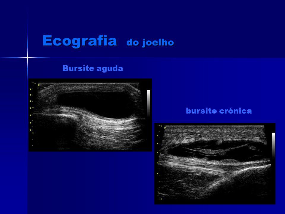 Ecografia do joelho Bursite aguda bursite crónica