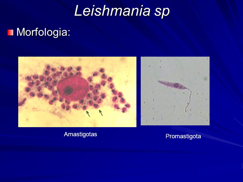 Leishmania sp Morfologia: Amastigotas Promastigota