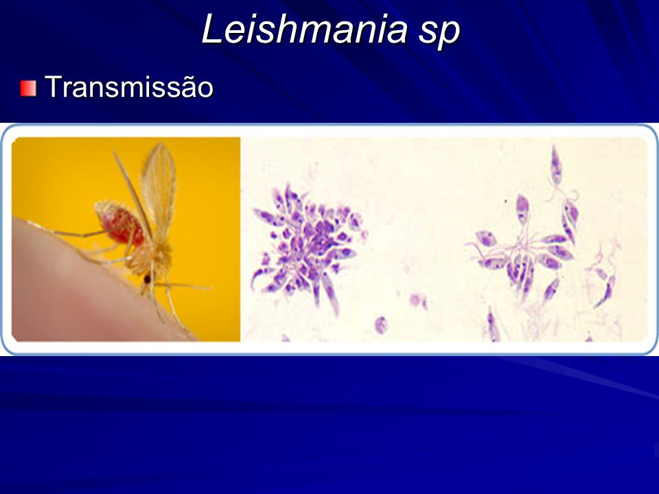 Leishmania sp Transmissão