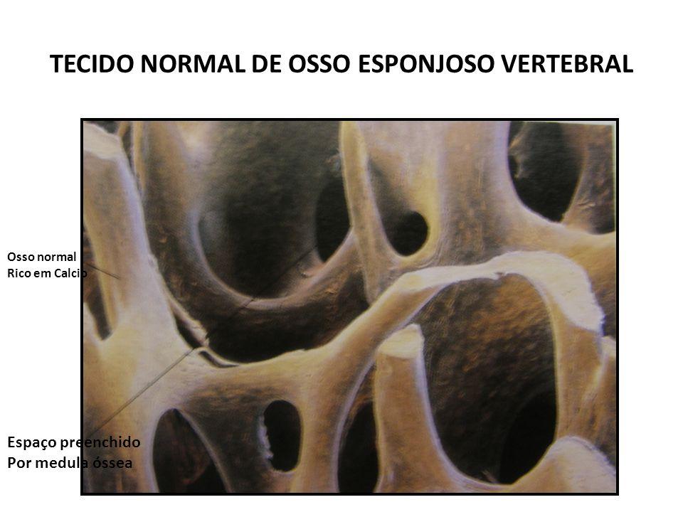 TECIDO NORMAL DE OSSO ESPONJOSO VERTEBRAL