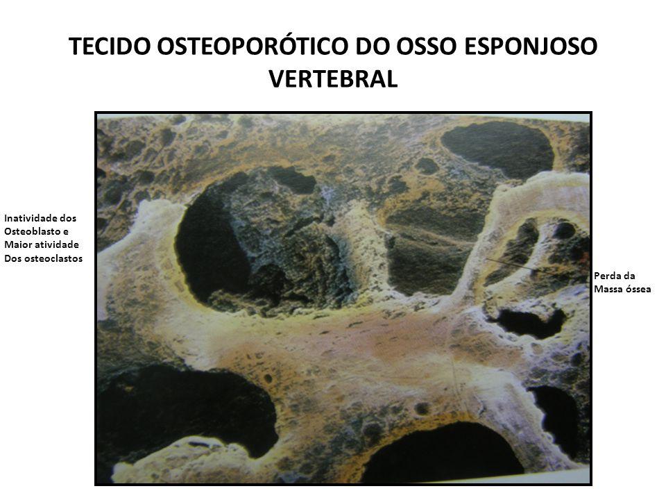 TECIDO OSTEOPORÓTICO DO OSSO ESPONJOSO VERTEBRAL