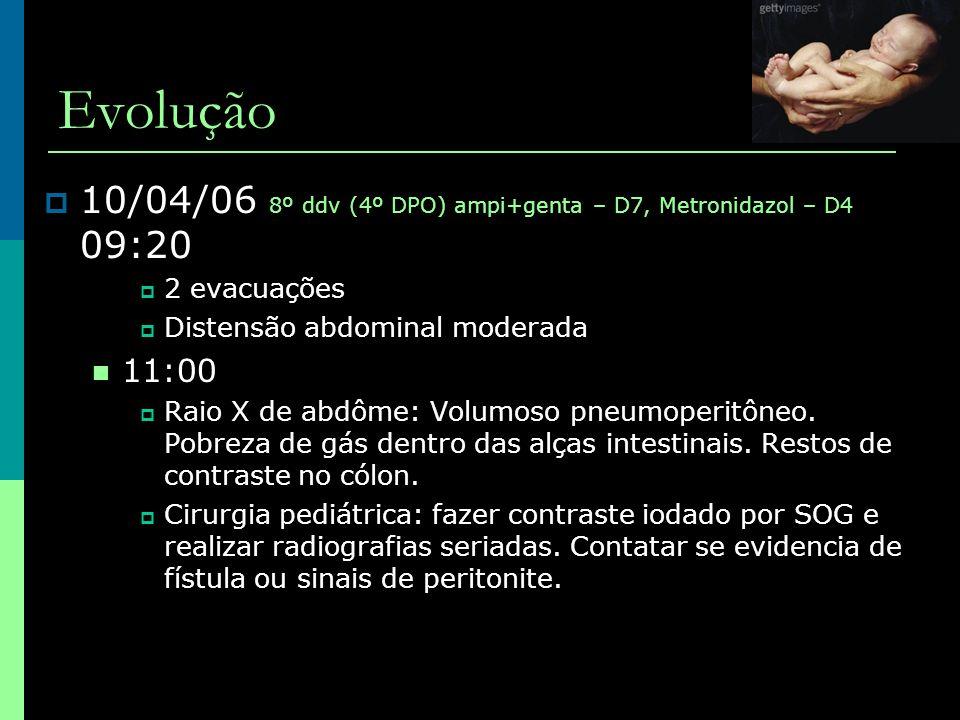 Evolução 10/04/06 8º ddv (4º DPO) ampi+genta – D7, Metronidazol – D4 09:20. 2 evacuações. Distensão abdominal moderada.