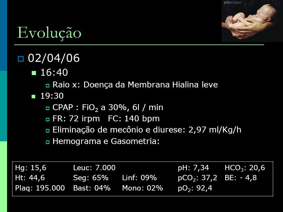 Evolução 02/04/06 16:40 Raio x: Doença da Membrana Hialina leve 19:30