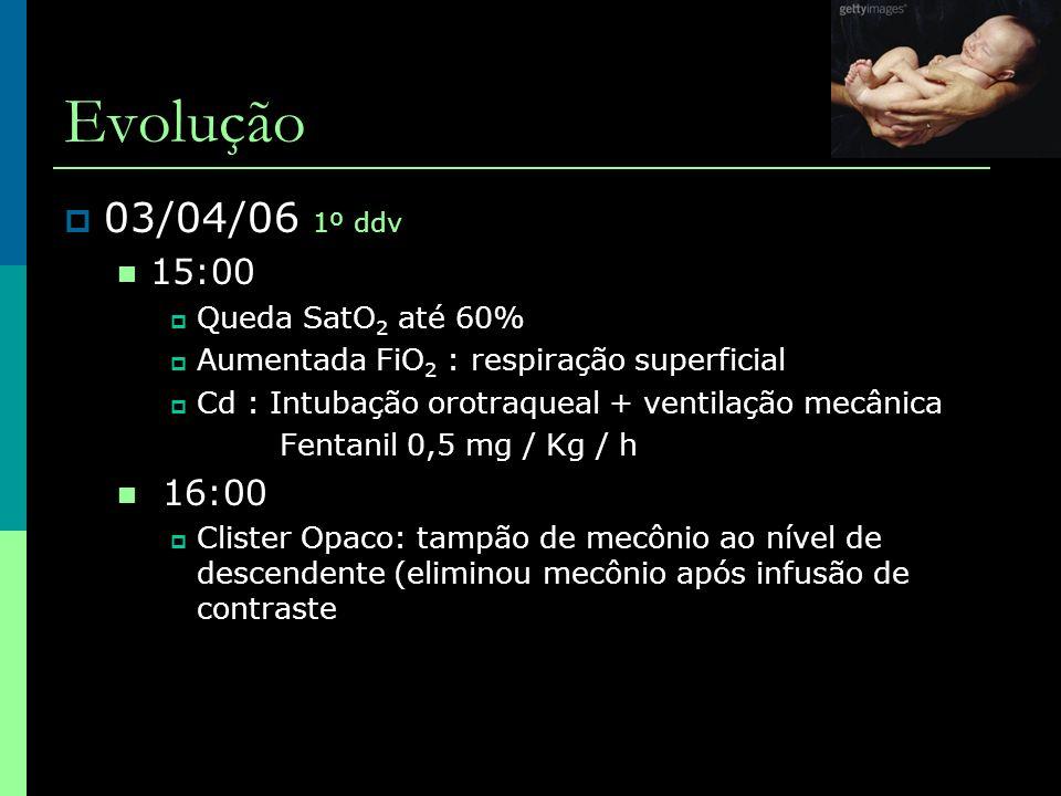 Evolução 03/04/06 1º ddv 15:00 16:00 Queda SatO2 até 60%
