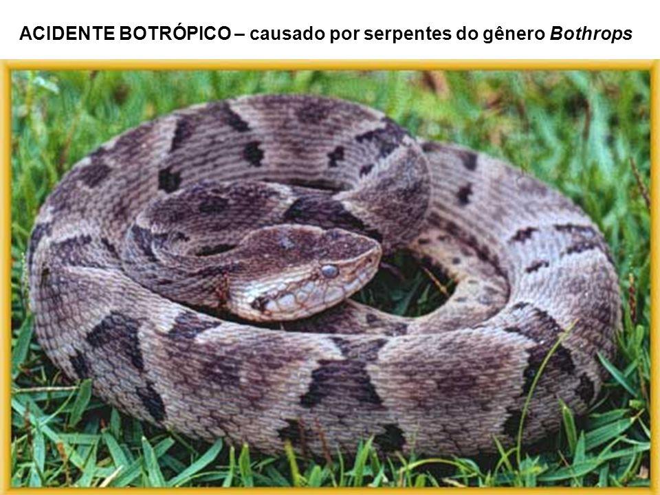 ACIDENTE BOTRÓPICO – causado por serpentes do gênero Bothrops
