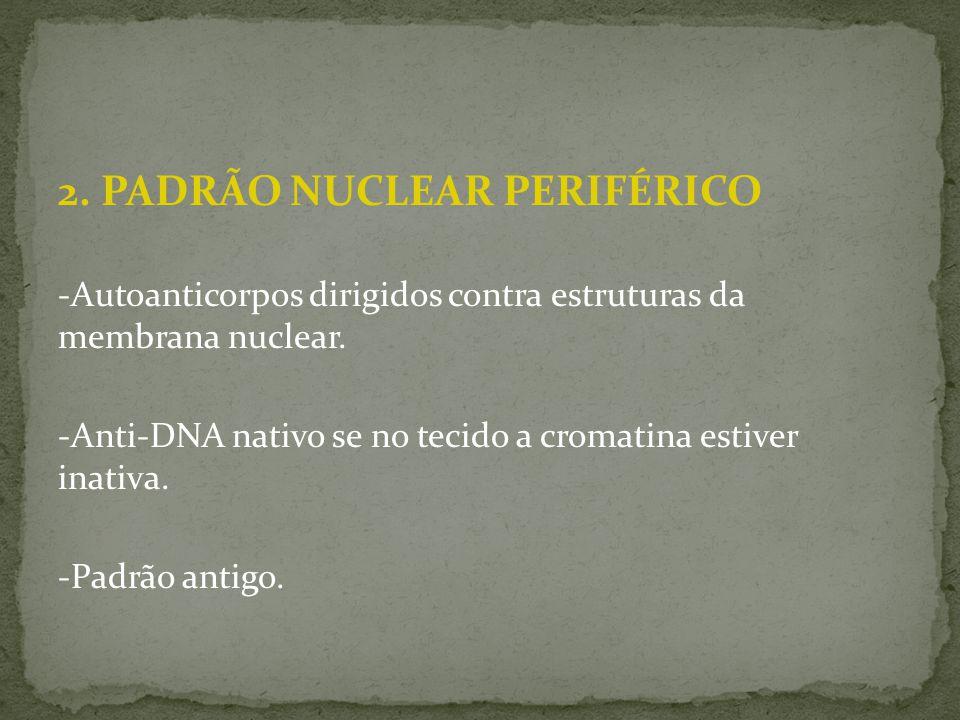 2. PADRÃO NUCLEAR PERIFÉRICO