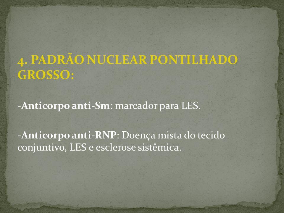 4. PADRÃO NUCLEAR PONTILHADO GROSSO: