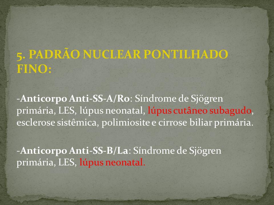 5. PADRÃO NUCLEAR PONTILHADO FINO: