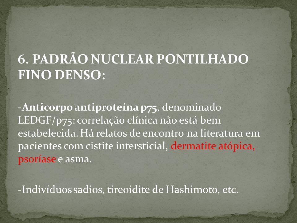 6. PADRÃO NUCLEAR PONTILHADO FINO DENSO: