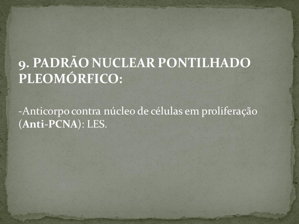9. PADRÃO NUCLEAR PONTILHADO PLEOMÓRFICO: