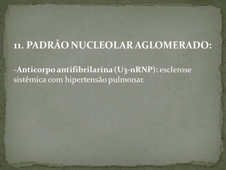 11. PADRÃO NUCLEOLAR AGLOMERADO: