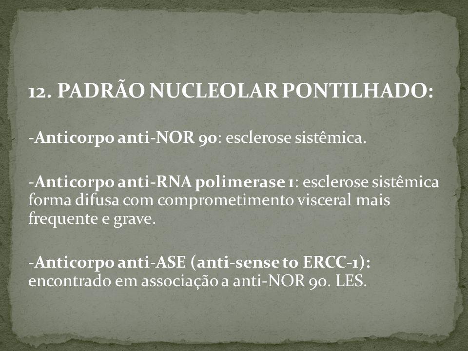12. PADRÃO NUCLEOLAR PONTILHADO: