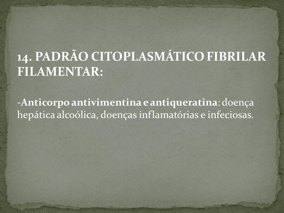 14. PADRÃO CITOPLASMÁTICO FIBRILAR FILAMENTAR: