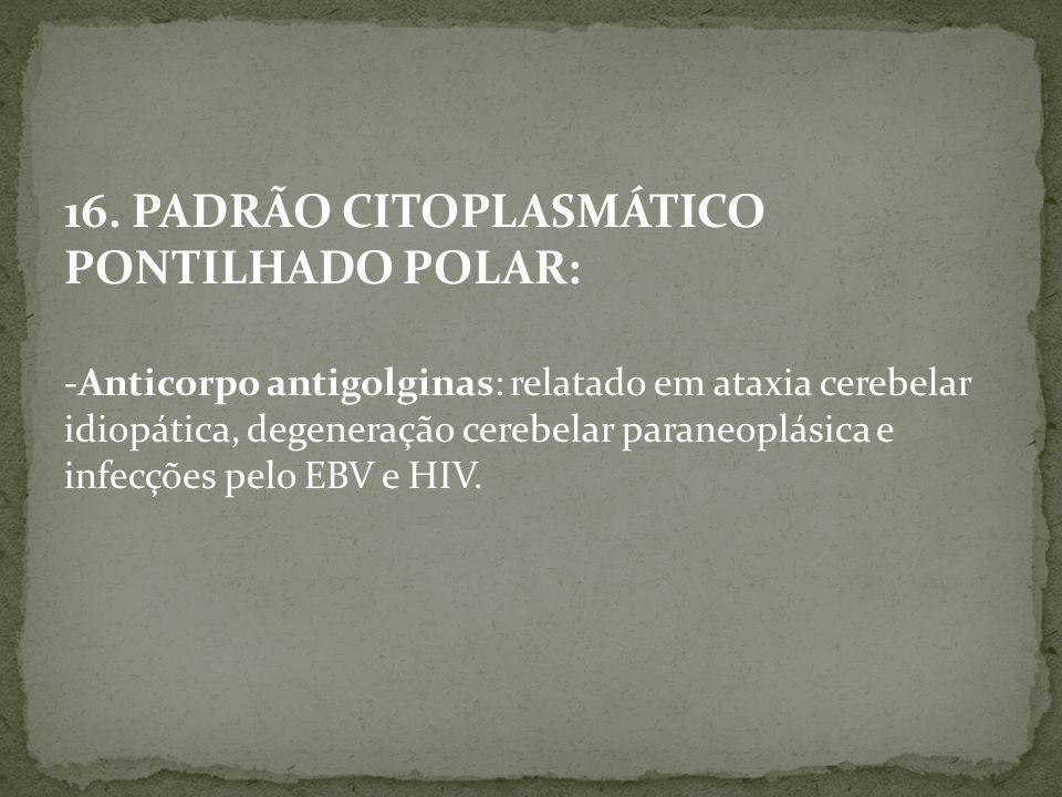 16. PADRÃO CITOPLASMÁTICO PONTILHADO POLAR: