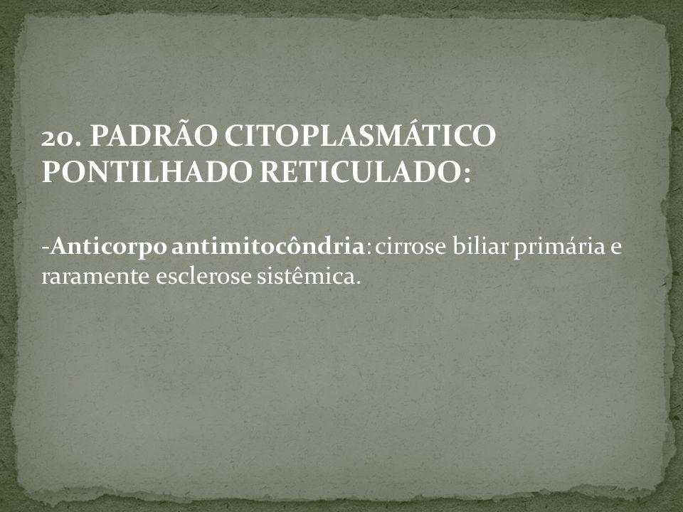 20. PADRÃO CITOPLASMÁTICO PONTILHADO RETICULADO: