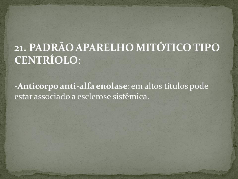 21. PADRÃO APARELHO MITÓTICO TIPO CENTRÍOLO: