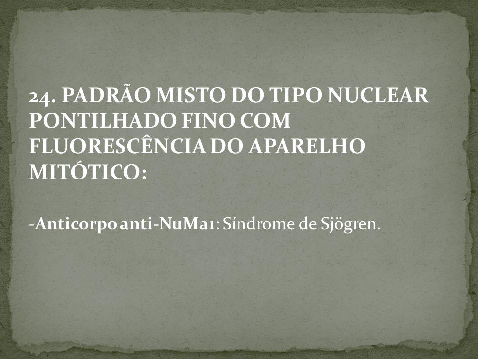 24. PADRÃO MISTO DO TIPO NUCLEAR PONTILHADO FINO COM FLUORESCÊNCIA DO APARELHO MITÓTICO: