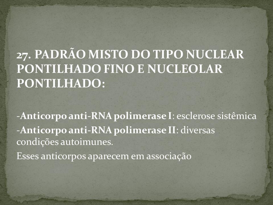 27. PADRÃO MISTO DO TIPO NUCLEAR PONTILHADO FINO E NUCLEOLAR PONTILHADO: