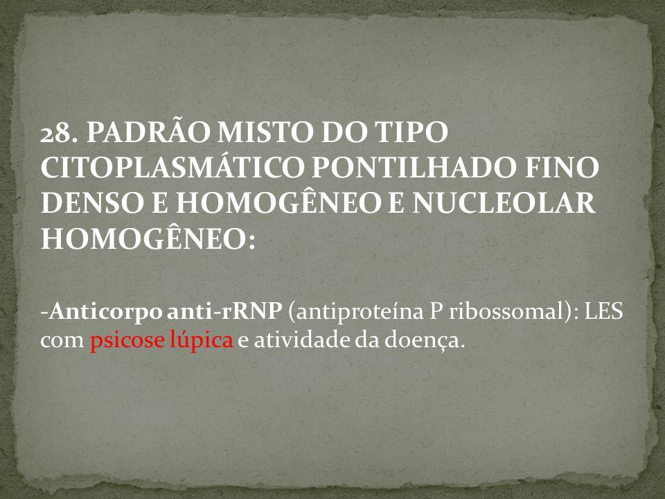 28. PADRÃO MISTO DO TIPO CITOPLASMÁTICO PONTILHADO FINO DENSO E HOMOGÊNEO E NUCLEOLAR HOMOGÊNEO: