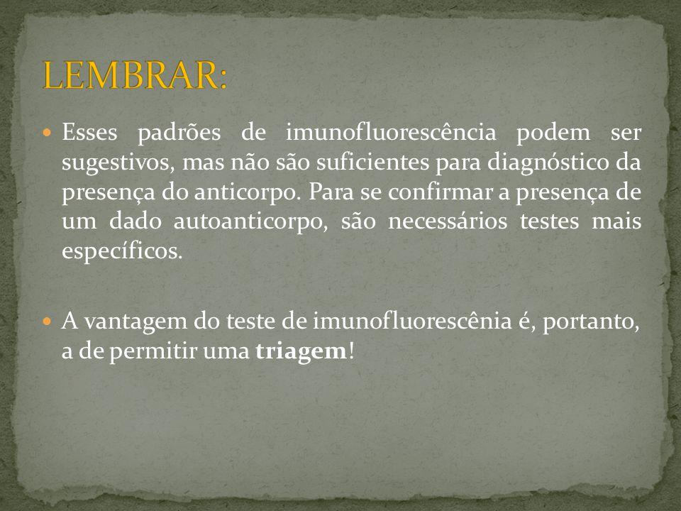 LEMBRAR: