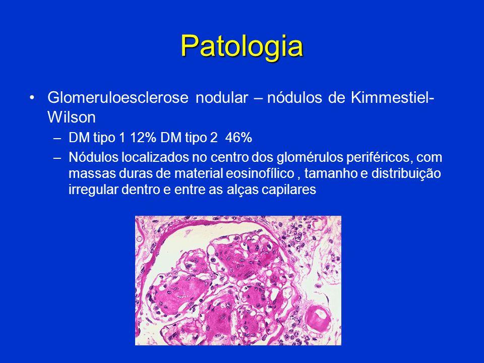 Patologia Glomeruloesclerose nodular – nódulos de Kimmestiel-Wilson