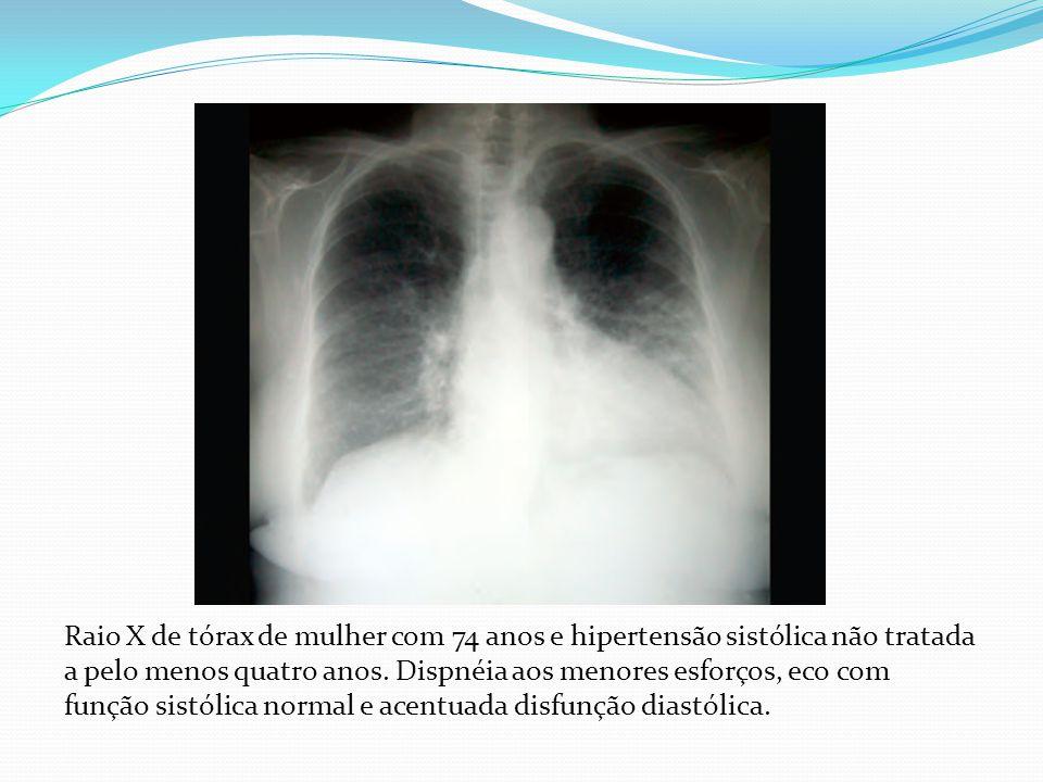 Raio X de tórax de mulher com 74 anos e hipertensão sistólica não tratada a pelo menos quatro anos.