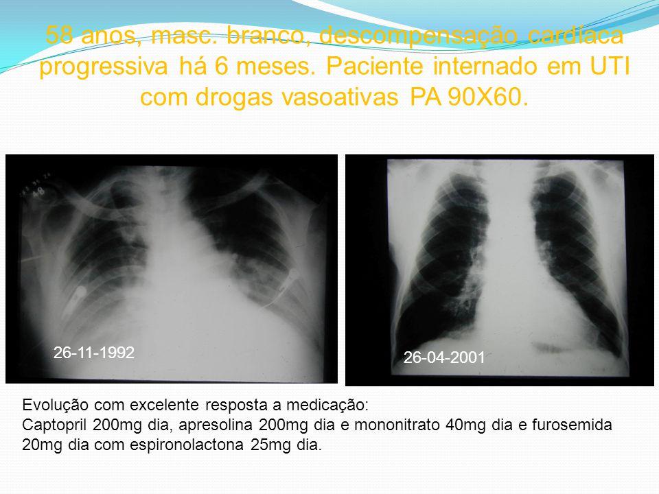 58 anos, masc. branco, descompensação cardíaca progressiva há 6 meses