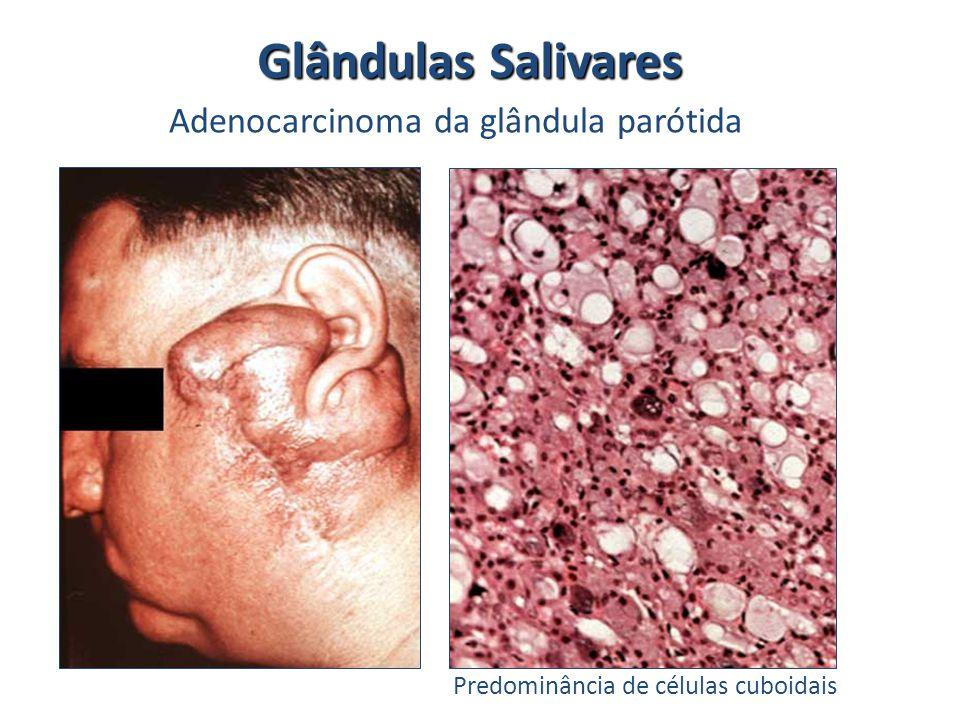 Glândulas Salivares Adenocarcinoma da glândula parótida