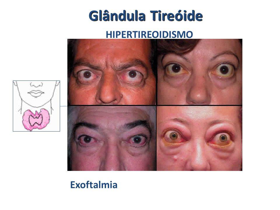 Glândula Tireóide HIPERTIREOIDISMO Exoftalmia