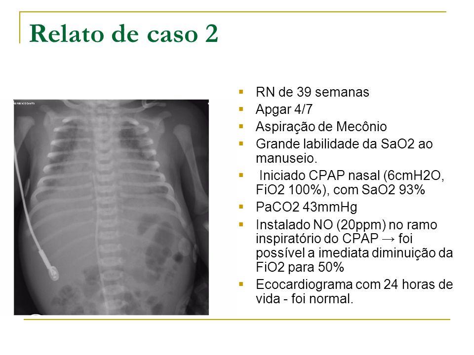 Relato de caso 2 RN de 39 semanas Apgar 4/7 Aspiração de Mecônio