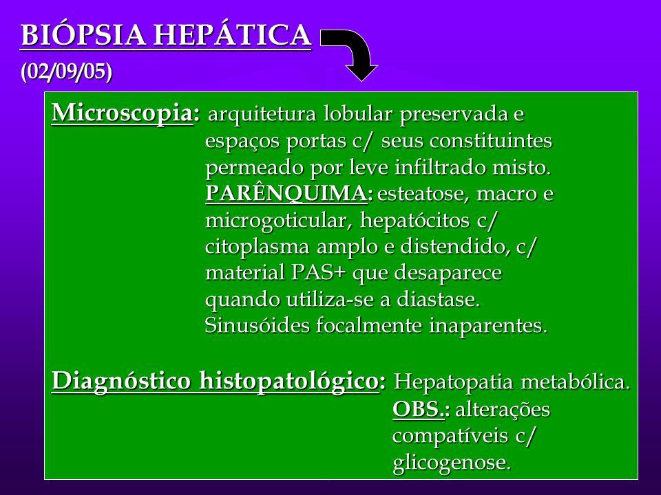 BIÓPSIA HEPÁTICA Microscopia: arquitetura lobular preservada e