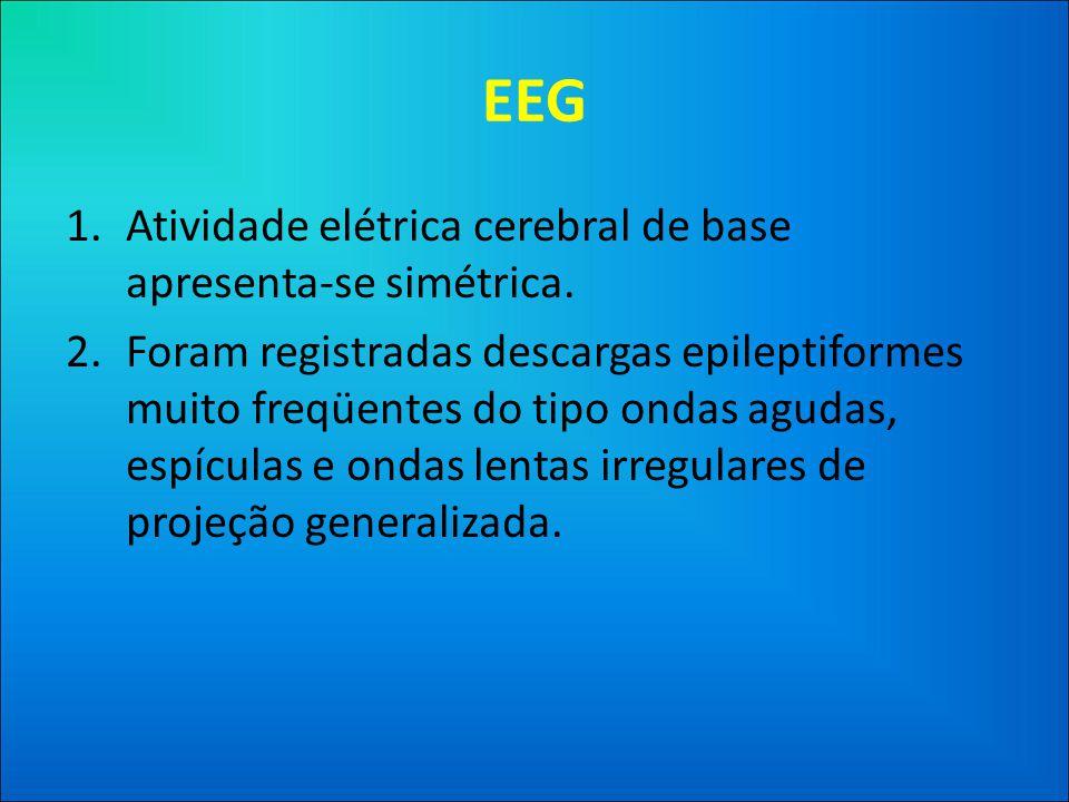 EEG Atividade elétrica cerebral de base apresenta-se simétrica.