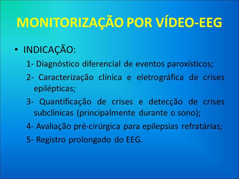 MONITORIZAÇÃO POR VÍDEO-EEG