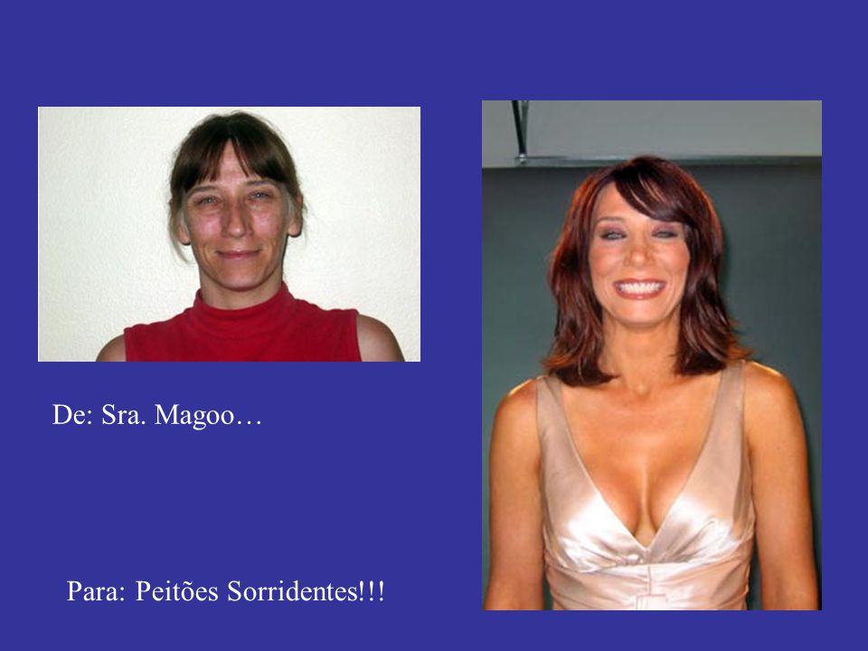 De: Sra. Magoo… Para: Peitões Sorridentes!!!