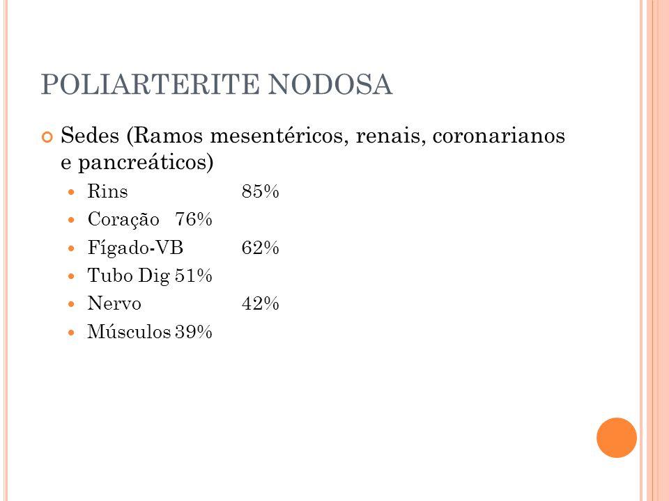POLIARTERITE NODOSA Sedes (Ramos mesentéricos, renais, coronarianos e pancreáticos) Rins 85% Coração 76%