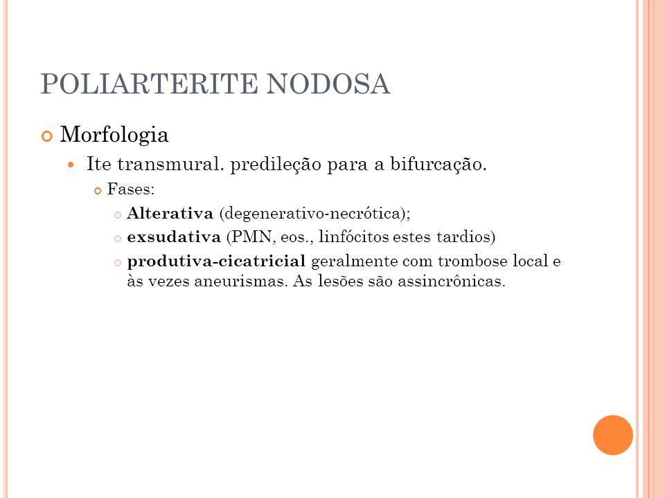 POLIARTERITE NODOSA Morfologia