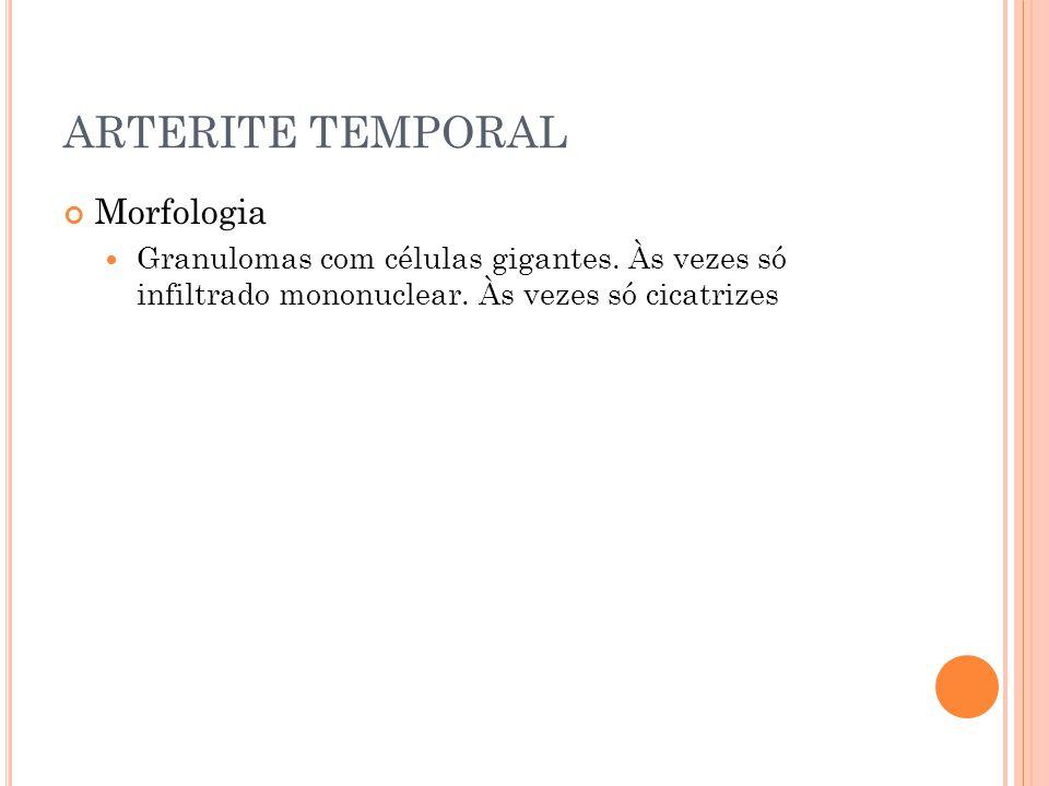 ARTERITE TEMPORAL Morfologia