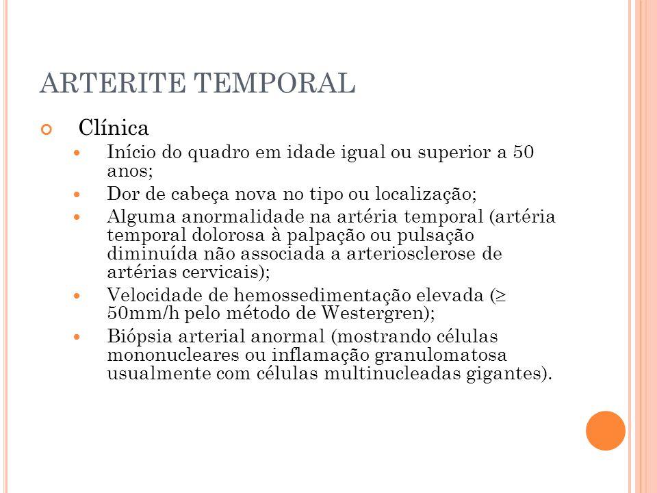 ARTERITE TEMPORAL Clínica