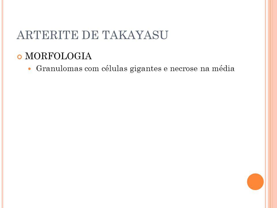 ARTERITE DE TAKAYASU MORFOLOGIA