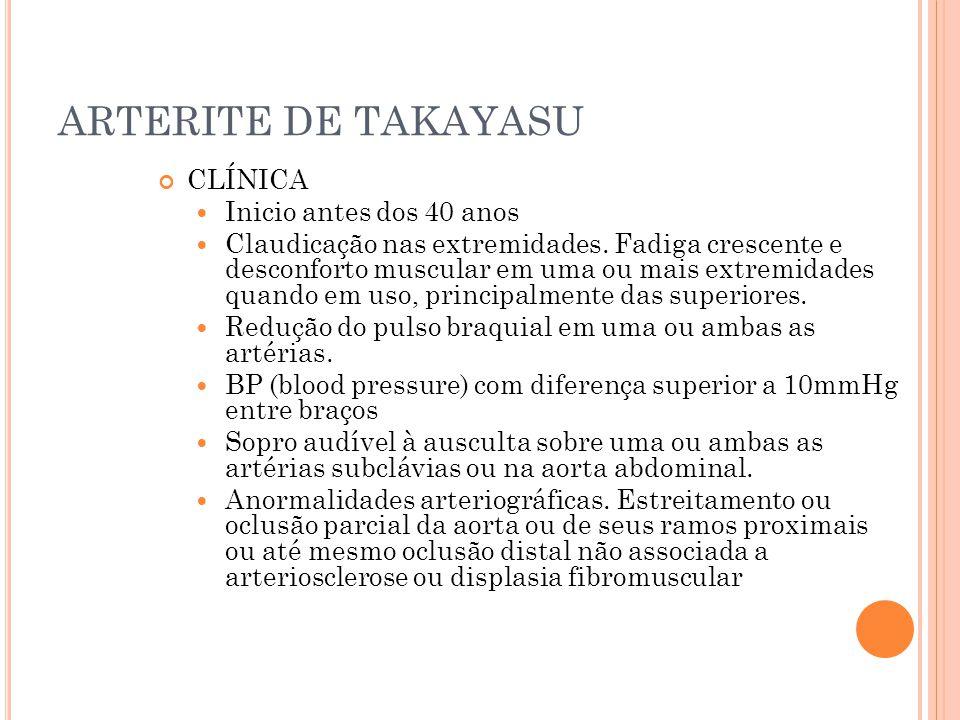 ARTERITE DE TAKAYASU CLÍNICA Inicio antes dos 40 anos