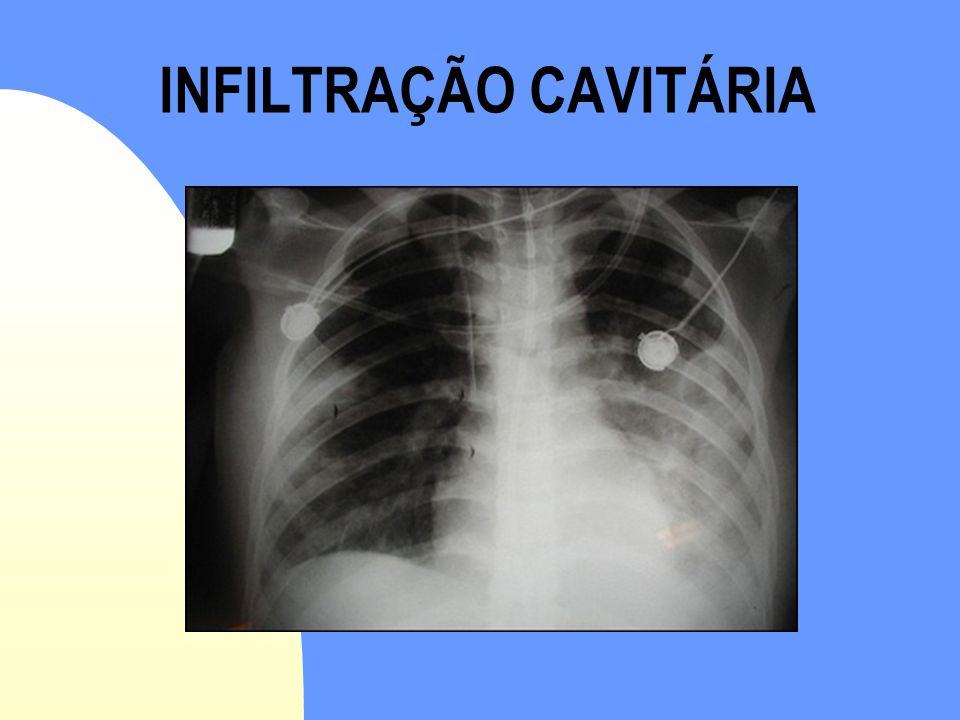 INFILTRAÇÃO CAVITÁRIA