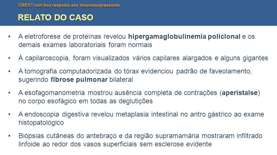 RELATO DO CASO A eletroforese de proteínas revelou hipergamaglobulinemia policlonal e os demais exames laboratoriais foram normais.