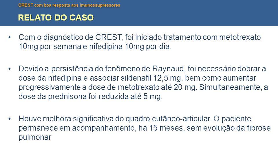 RELATO DO CASO Com o diagnóstico de CREST, foi iniciado tratamento com metotrexato 10mg por semana e nifedipina 10mg por dia.