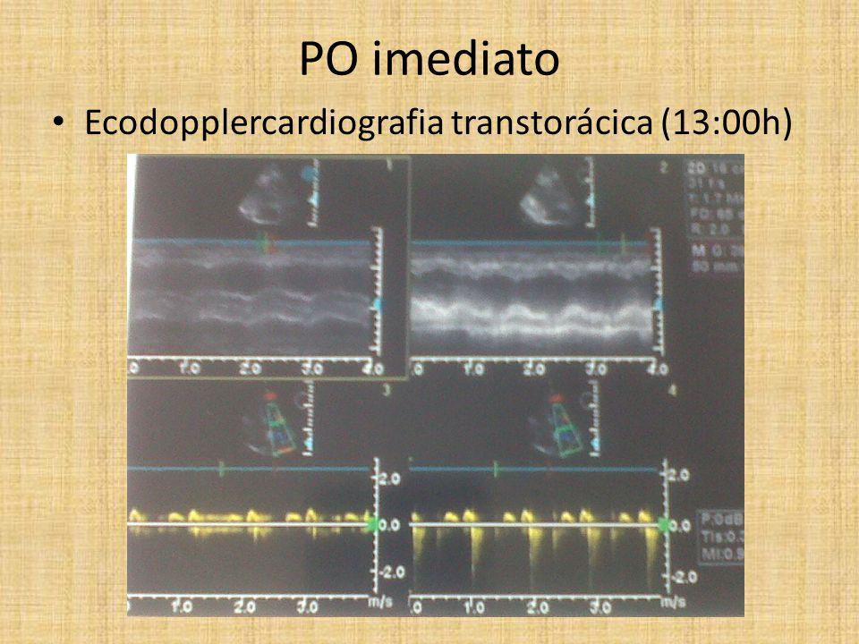 PO imediato Ecodopplercardiografia transtorácica (13:00h)